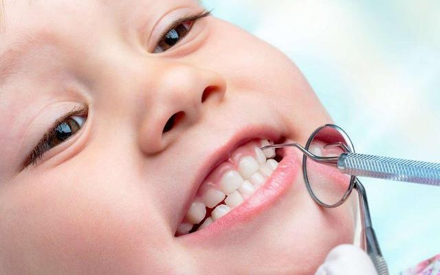 Изучают новый метод борьбы с кариесом в детском возрасте