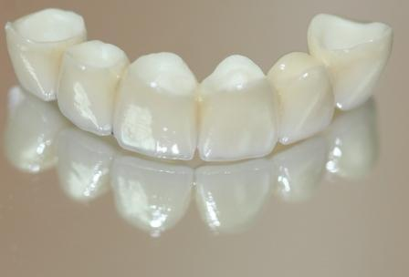 Идеальный вариант восстановления зубной дуги: CAD/CAM циркониевый мостовидный протез на имплантатах