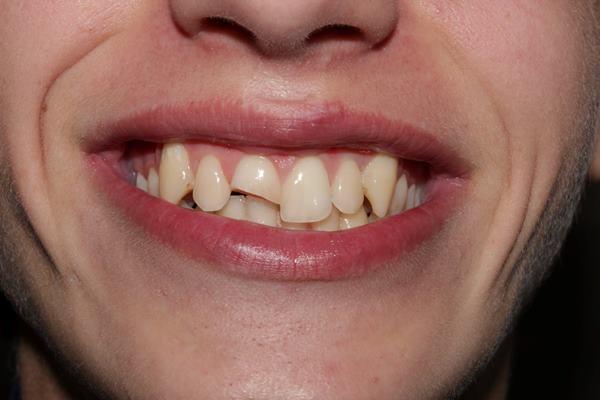 Реабилитация переднего зуба после травмы композитом Enamel hri