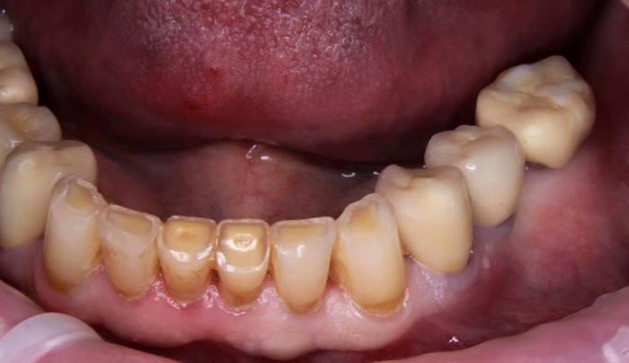Несостоятельность 34 зуба по причине резорбции корня