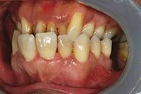 Кортикотомия в ортодонтии - Медик