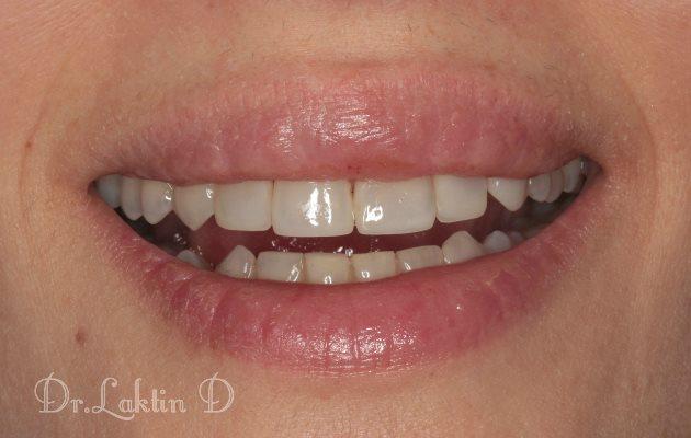 Важность объёма зубов в восприятии эстетики