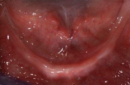 Немедленная реабилитация нижней челюсти с атрофией тяжелой степени при помощи полного протеза с фиксацией на четыре имплантата