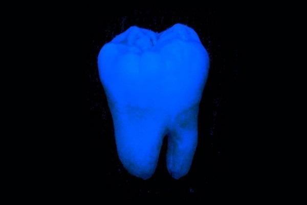 Найден более щадящий способ отбелить зубы