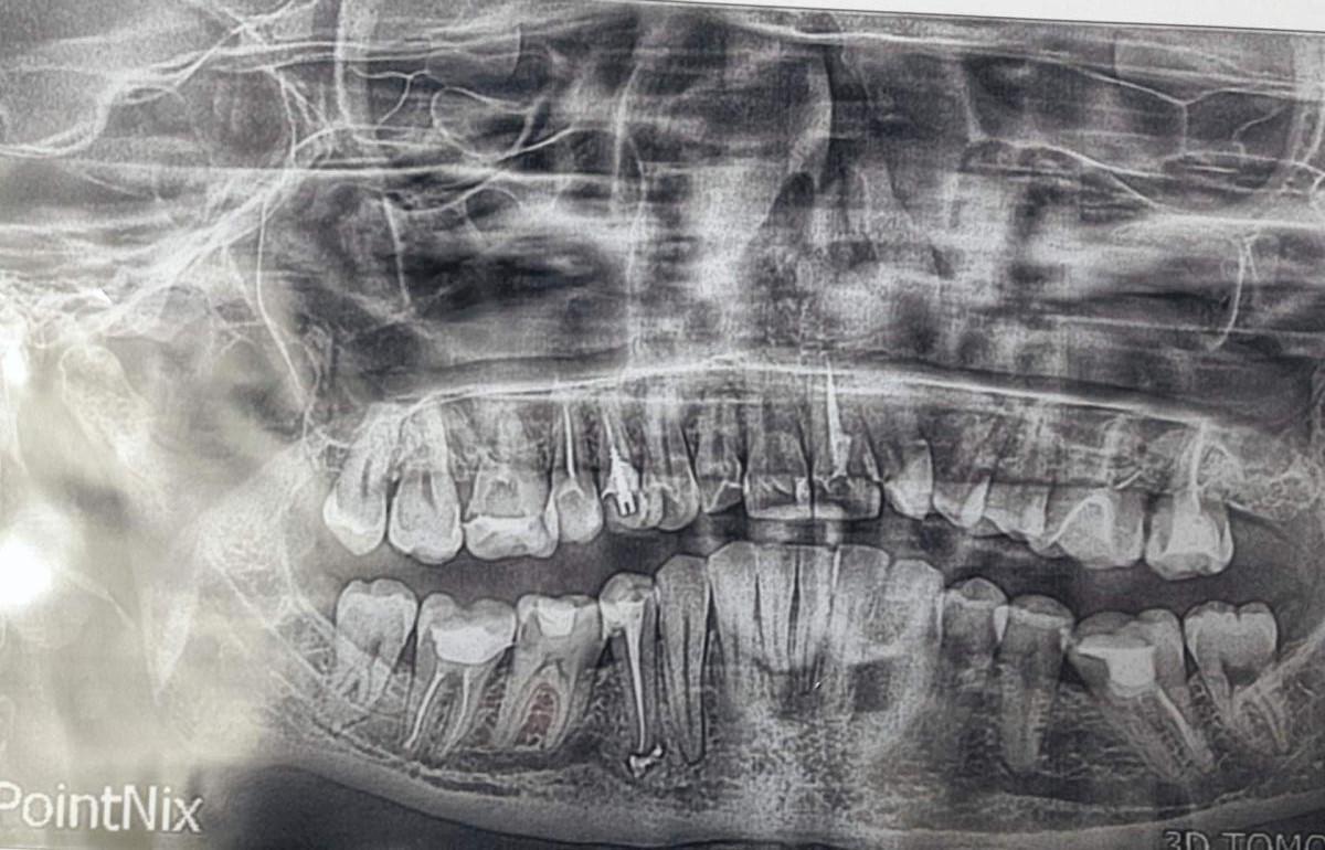 Панорамные снимки зубов в гродно