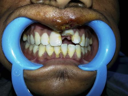 Клинический случай интрузии зуба