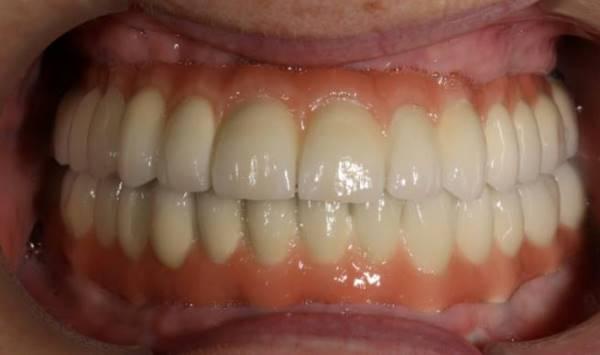 Тотальное протезирование на имплантатах Биогоризонт обеих челюстей
