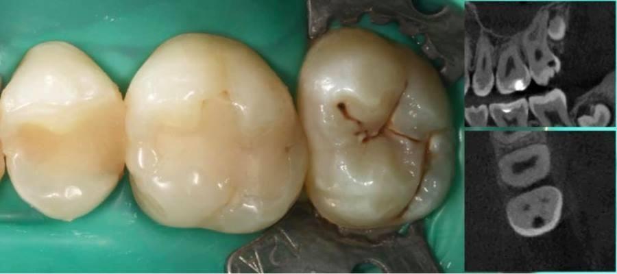 Прямая реставрация 26, 27 зубов