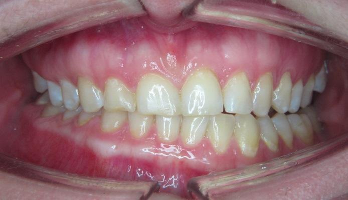 Результат комплексного лечения деформации челюстей вследствие кондиллярной гиперплазии нижней челюсти слева
