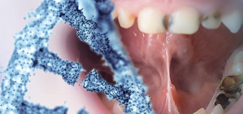 Обнаружили 47 новых генов, связанных с заболеваниями зубов и десен