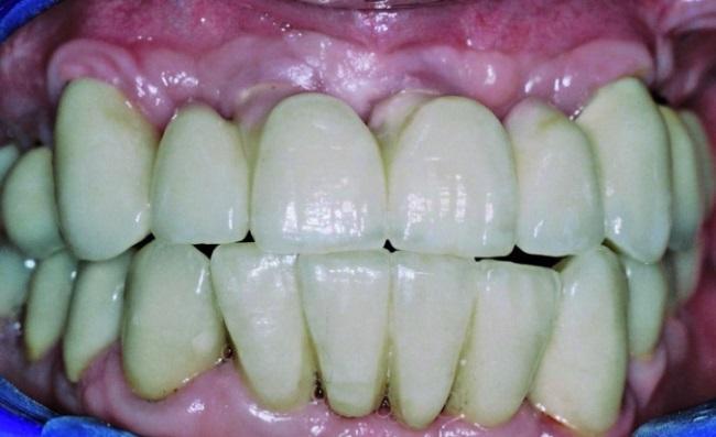 Перелом абатмента у протеза с опорой на собственные зубы и имплантаты