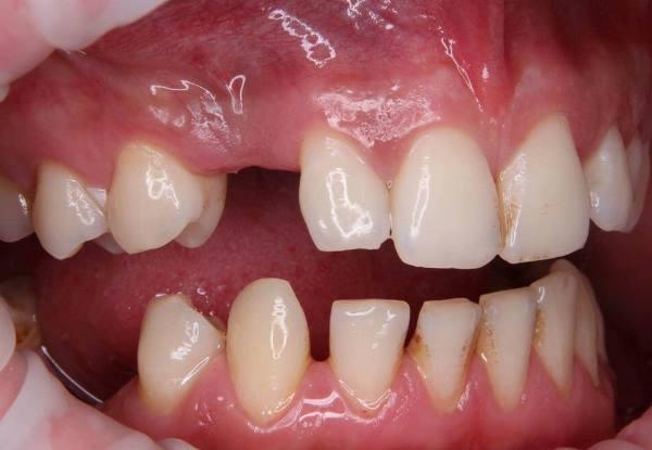 Лечение врожденной адентии 13 зуба с использованием имплантата