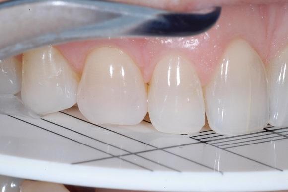 Системный подход к моделированию фронтальных зубов