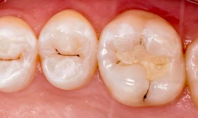 Художественная реставрация зуба 1.6