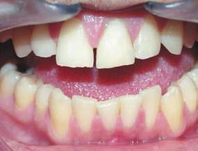 Зуб 21 после завершения лечения