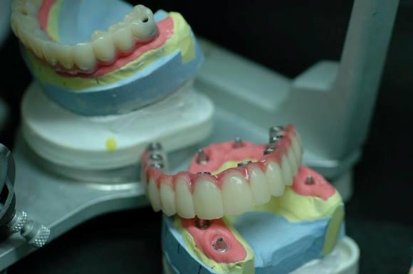 Плановая замена съёмного протеза на условно съёмный