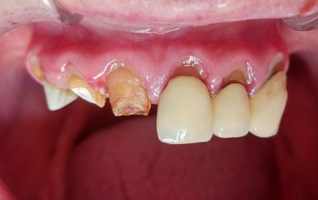 Восстановление функции и эстетики на верхней челюсти