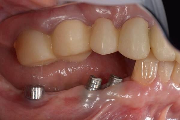 Поэтапная тотальная стоматологическая реабилитация