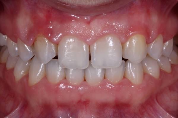 Плановая трансформация зубов после снятия брекетов при первичной адентии 12, 22 зубов