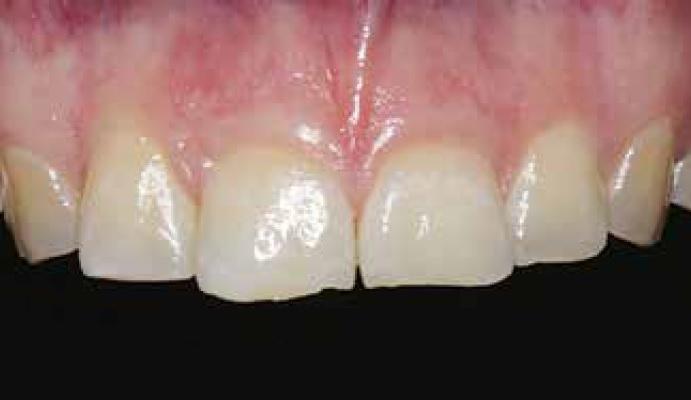 Окклюзионные виниры на дистальные зубы