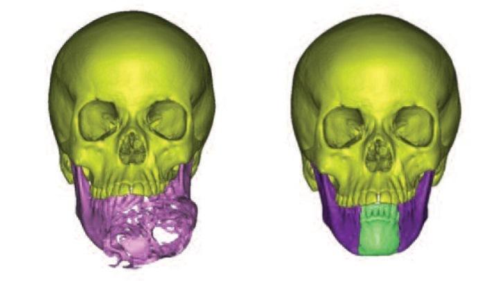 Реконструкция нижней челюсти с использованием виртуального программного обеспечения