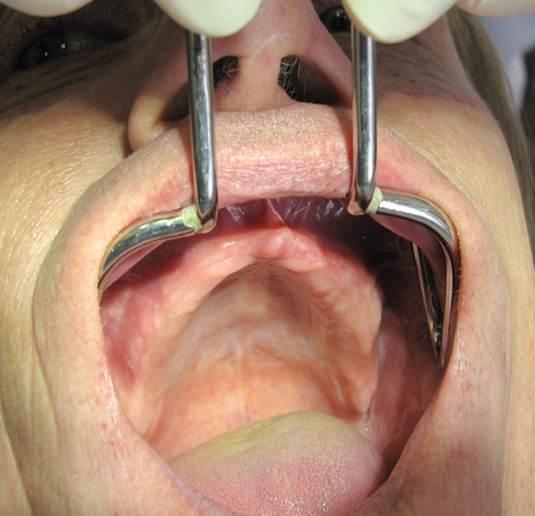 Верхняя челюсть - полная адентия, 15 лет съемный пластинчатый протез