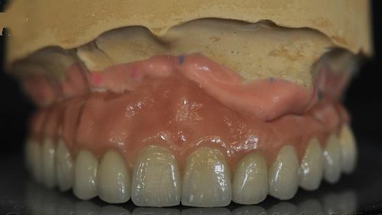 Протез на верхнюю челюсть с опорой на 9 имплантатов системы CALCITEK