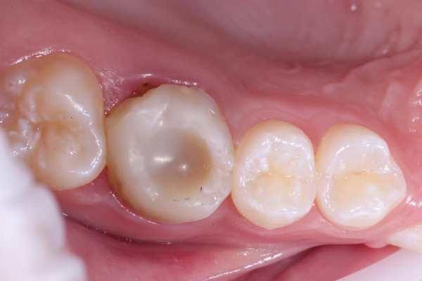 Последняя надежда зуба