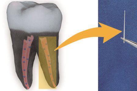 Найден способ сохранять зубы после лечения корневых каналов с помощью ультрадисперсных алмазов