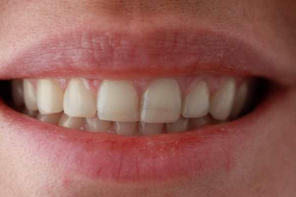 Виниры E.max после ортодонтического лечения