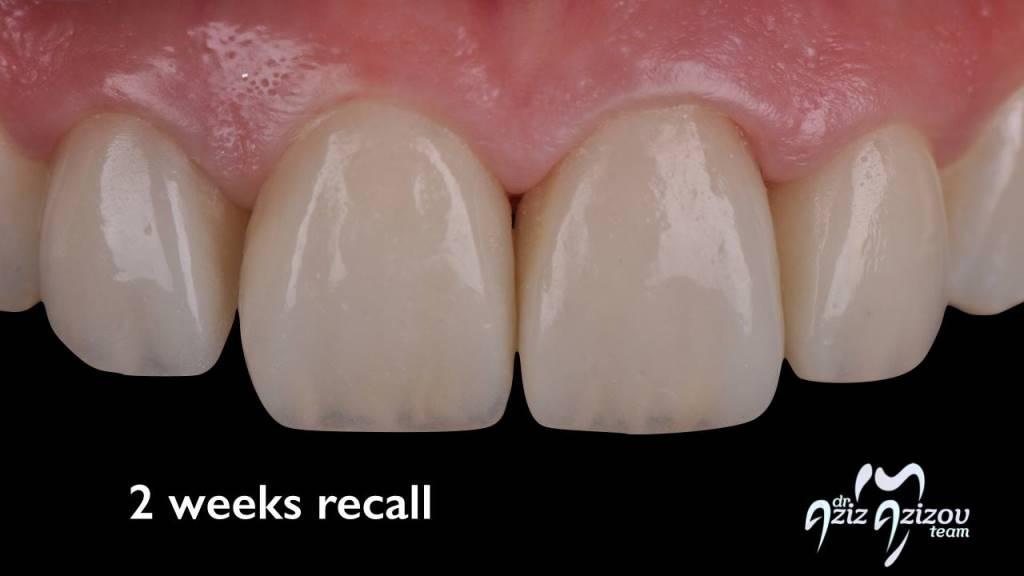 виниры на зубы через интернет магазин отзывы