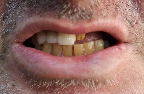 Протезирование фронтальной и жевательной группы зубов верхней челюстей с использованием металлического каркаса, облицованного керамикой
