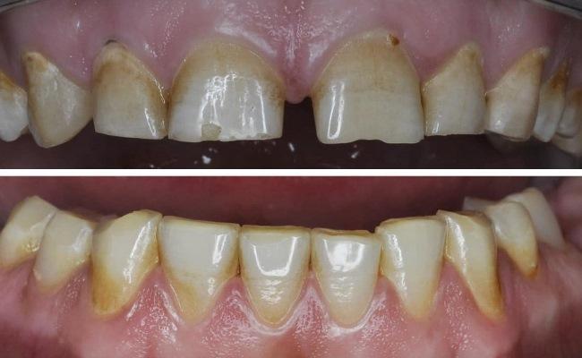 Применение прямой и непрямой техники реставрации фронтальных зубов в комплексной реабилитации пациента с дефектом зубных рядов