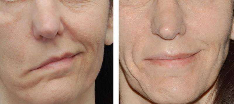Лицевая парестезия, возникшая вследствие эндодонтического лечения