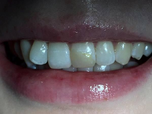 Прямая композитная реставрация 2.1 зуба