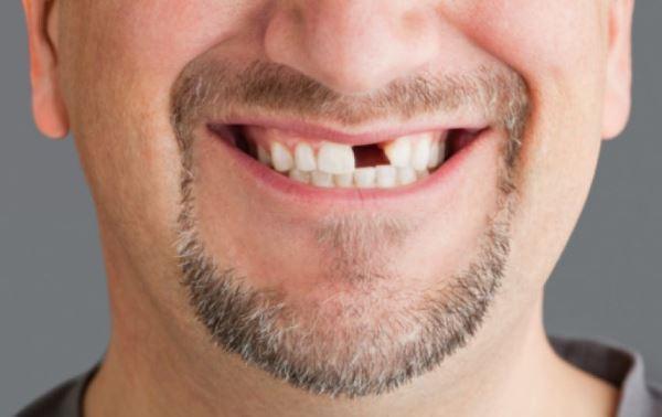 По числу выпавших зубов можно судить о продолжительности жизни человека