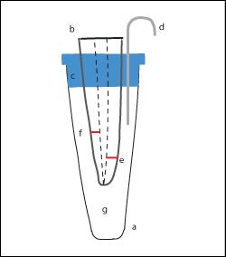 Влияние искусственных добавочных каналов на точность измерений электронным апекс-локатором