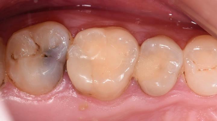 Восстановление прямым методом глубоких кариозных полостей 1.7, 1.6, 1.5 зубов