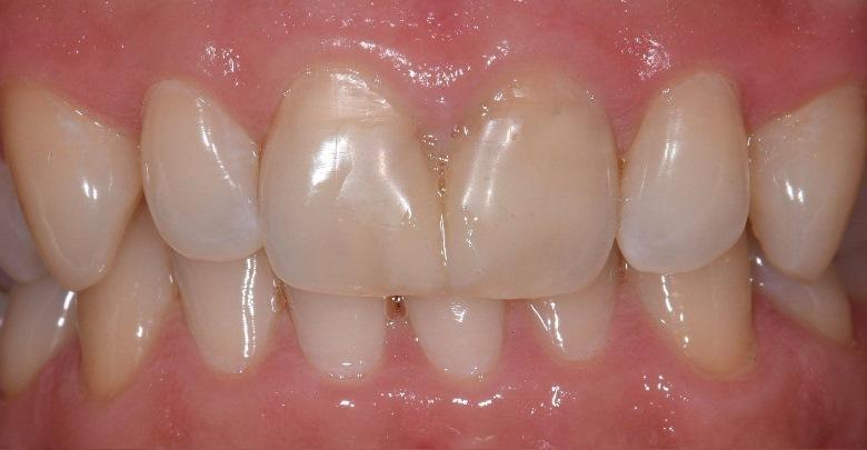 Восстановление четырех передних зубов при помощи e.max коронок и нон-преп виниров