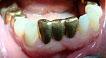 Металлический мостовидный протез во фронтальном отделе нижней челюсти нарушает эстетику зубного ряда