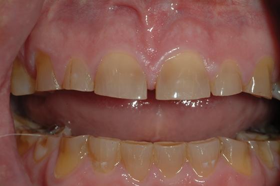 Долговременные провизионные конструкции и их роль в функциональной реабилитации стоматологических пациентов