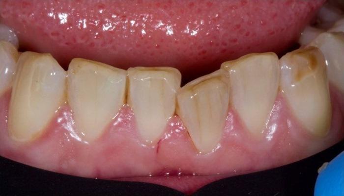 Мини ортодонтия для стоматолога терапевта - изменение положения центрального резца нижней челюсти
