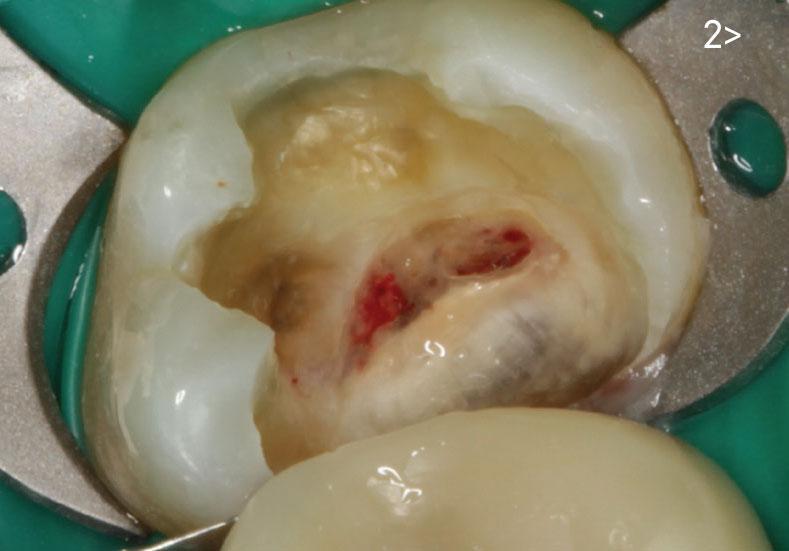 Покрытие Пульпы Зуба Защитное