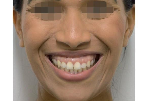 Десневая улыбка: гингивопластика и ботулотоксин - путь к решению проблемы