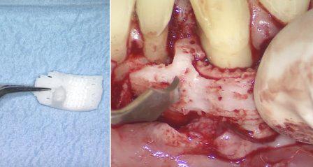 Первый опыт применения зубной ткани, напечатанной на 3D-принтере, не удался