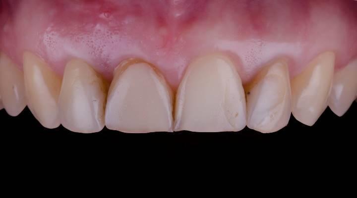 Удаление центрального резца верхней челюсти с одномоментной имплантацией и восстановлением цельнокерамической коронкой