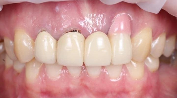 Восстановление бело-розовой эстетики во фронтальном отделе