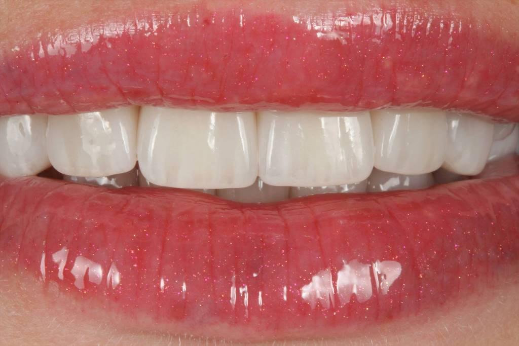 Ремонт зубов винир