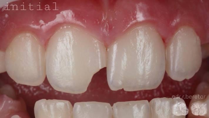 Прямая реставрация зуба 1.1 после травмы