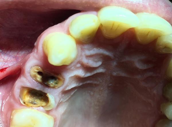 Восстановление коронки 14, 15 зубов с помощью стекловолоконного штифта